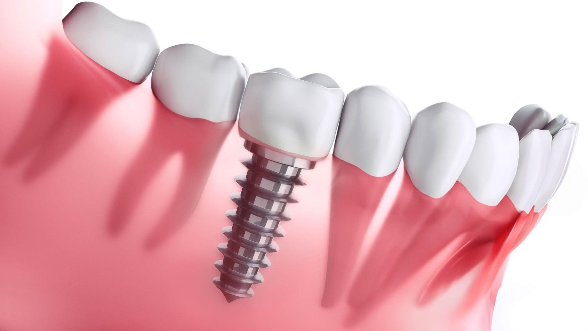reclamar financiera dentix
